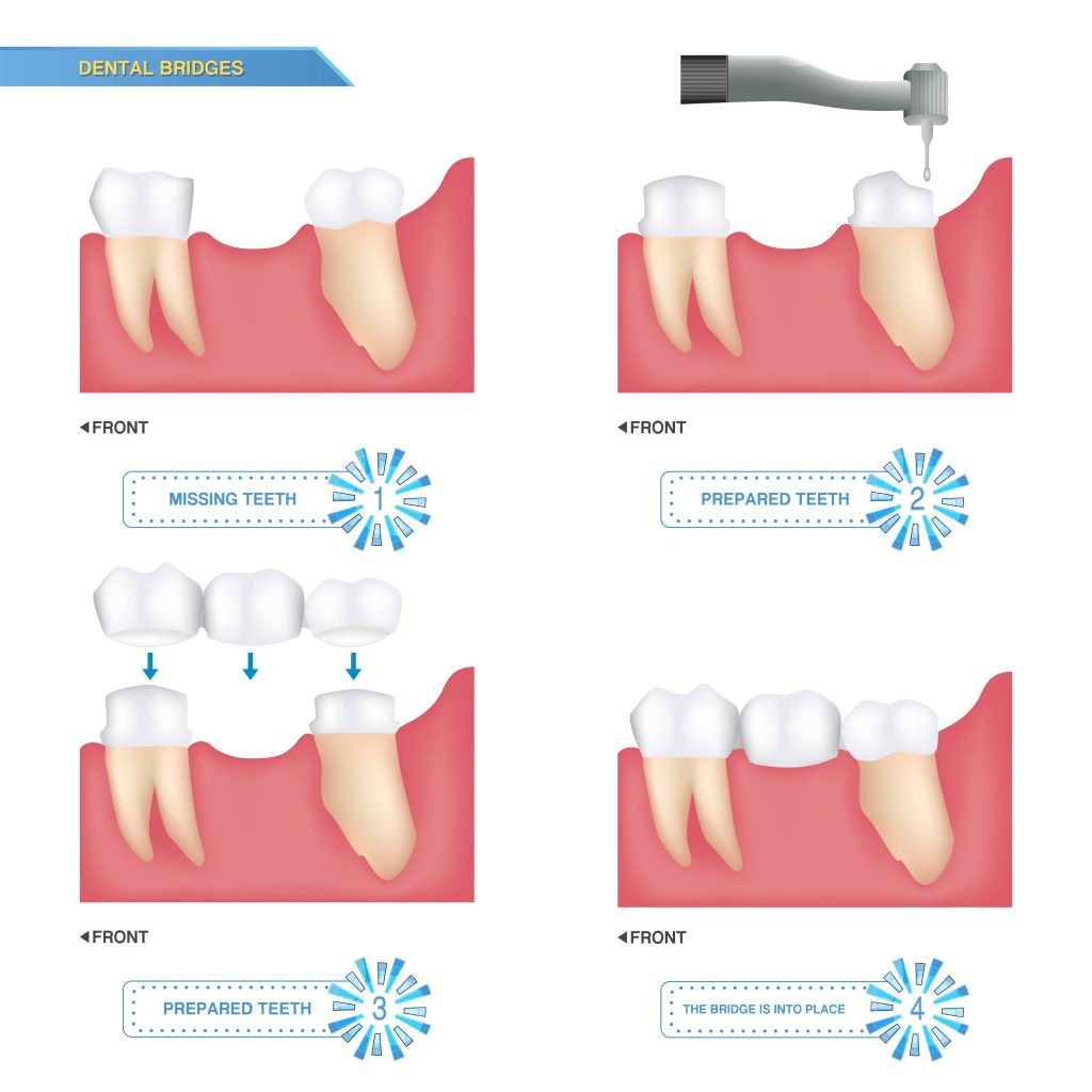 Procedure of Dental Bridges