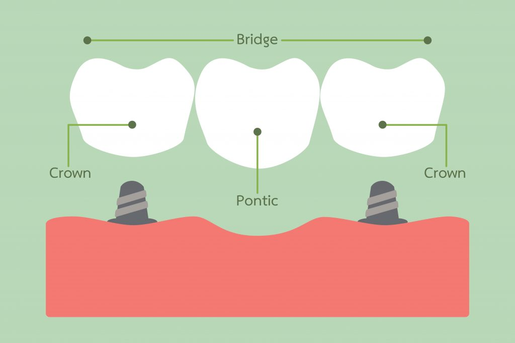 Teeth Bridges Procedure