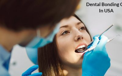 dental bonding cost
