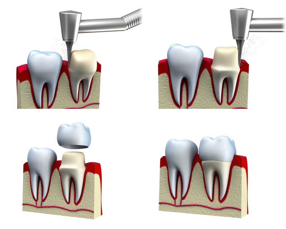dental crowns procedure
